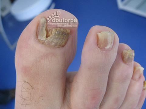 Gro Raumgarage fungos em unhas