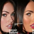 Rinoplastia: Antes e depois