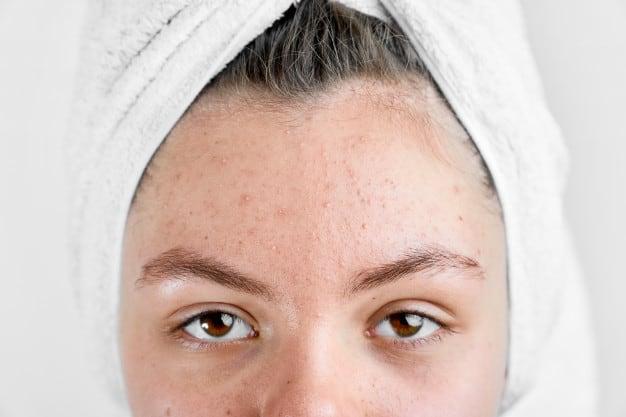 evitar acne na vida adulta