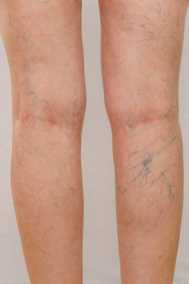 Varizes na perna de uma idosa