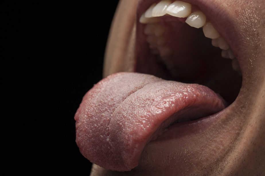 mau hálito higiene bucal limpador de língua